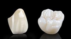 ceramic-smile